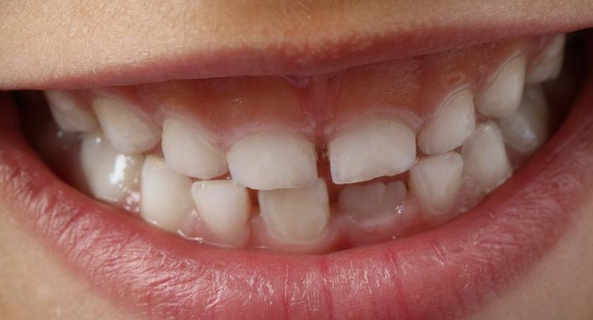 Wiadomości, Bezpłatne przeglądy dentystyczne dzieci rusza Akademia Zdrowego Uśmiechu - zdjęcie, fotografia